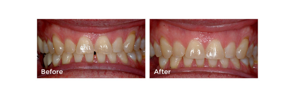 Dental Bonding: Before and After
