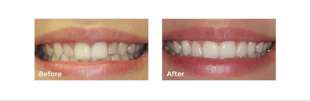 Cosmetic Dentistry: Dental Veneers