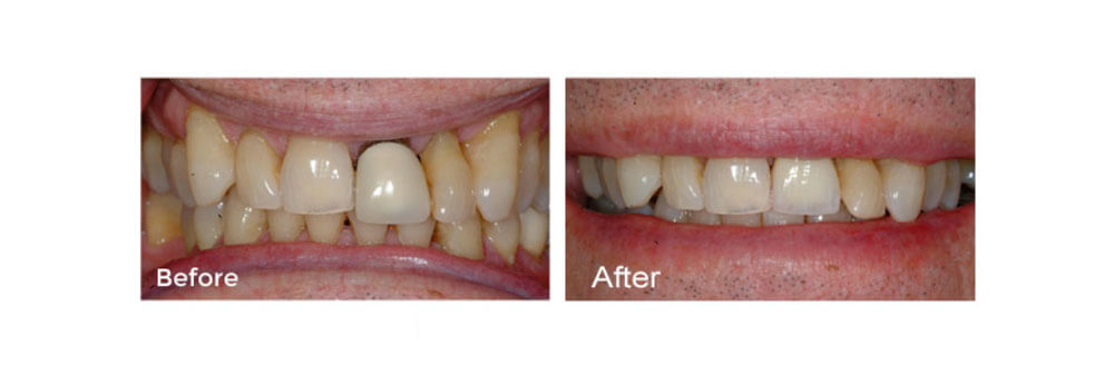 Tooth Repair: Single Crown