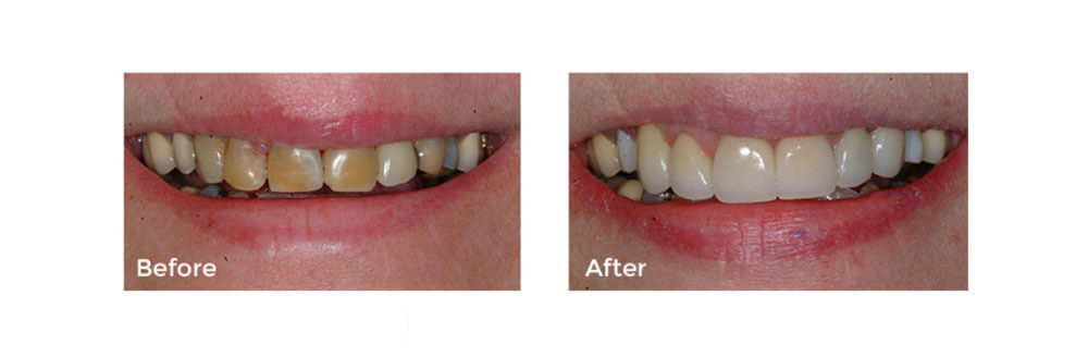 Tooth Repair: Anterior Crowns