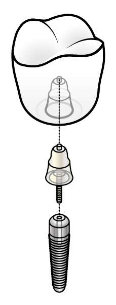 This is a diagram of an implant.