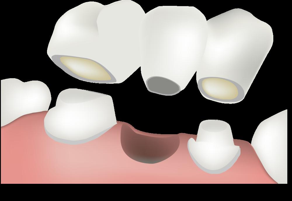 A dental bridge can span the gap of missing teeth.
