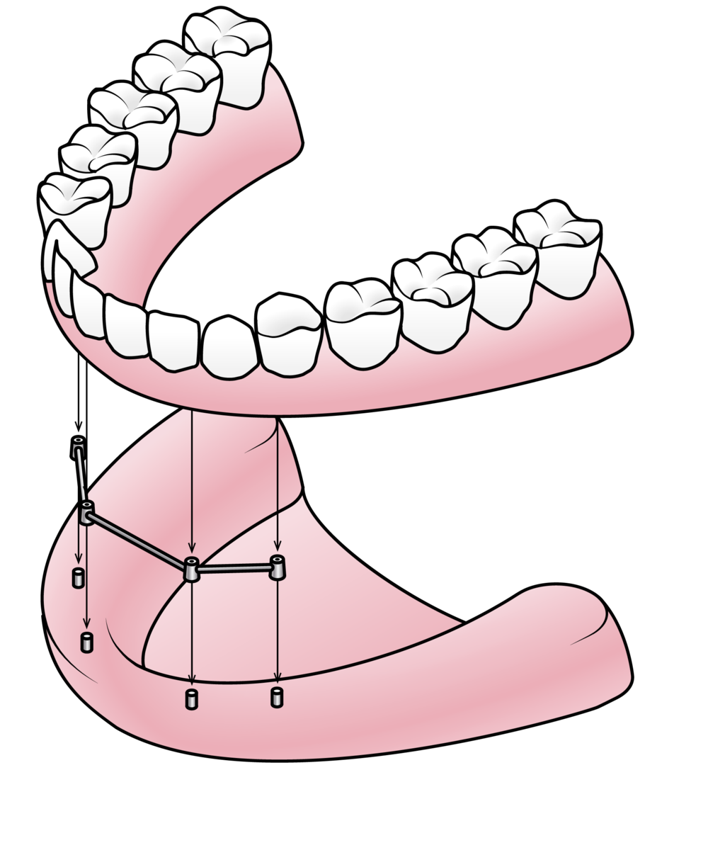 Implants can be used to support dentures.
