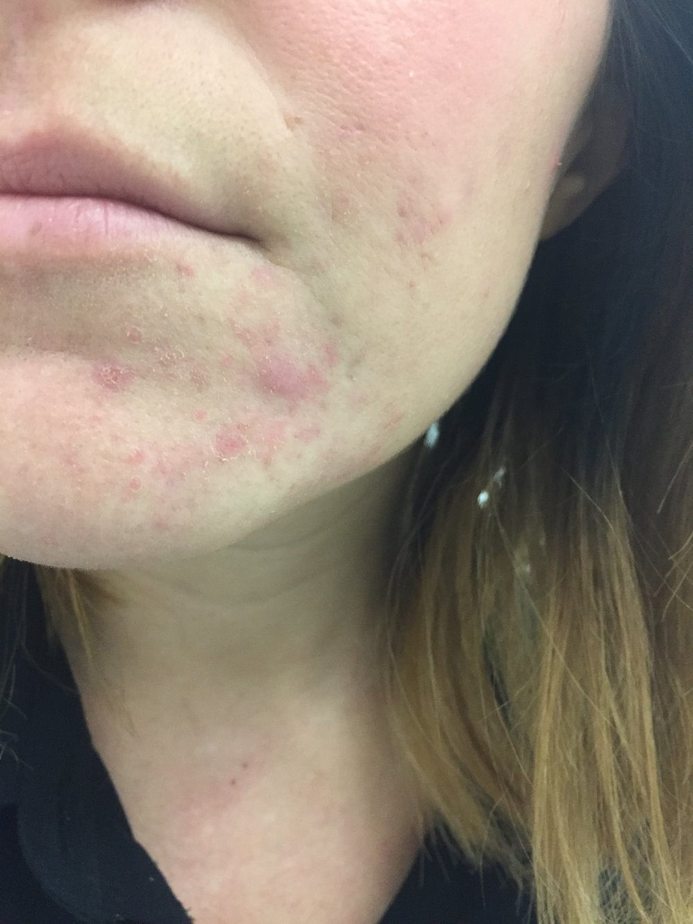 November 2016: - During this time I had a lot going on in my life; I was working a job with all men, and even though I knew they weren't judging me - I felt embarrassed to come to work everyday with angry spots on my face. I remember a lot of mornings, sitting on the train, distracted by the throbbing pain on my face, begging myself not to cry in public.