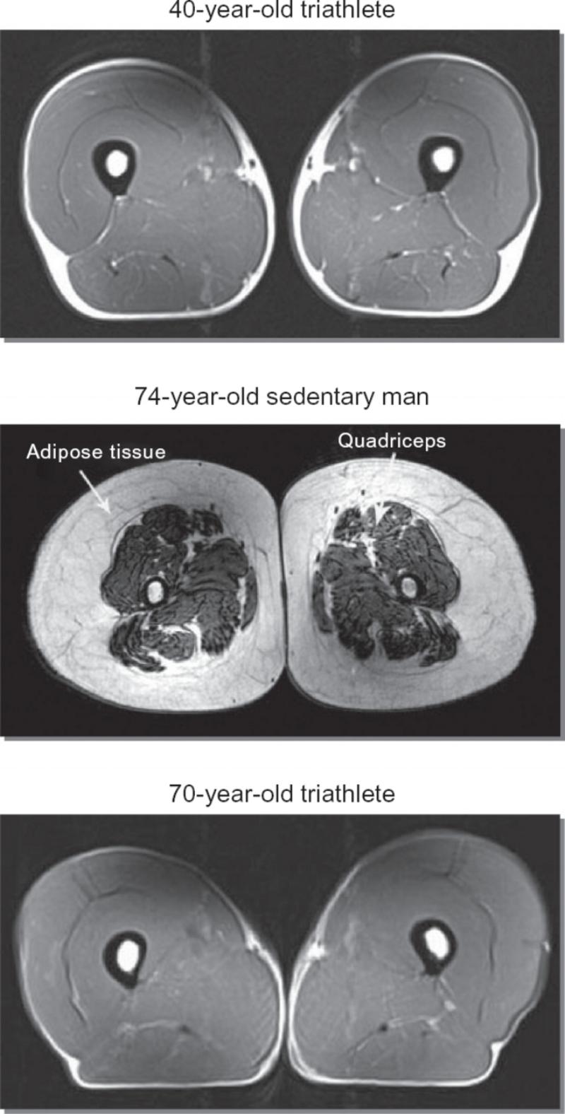 MRI bone scan.jpg