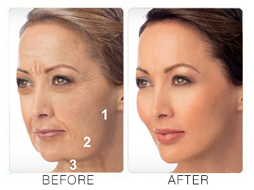 liquid facelift before after 2