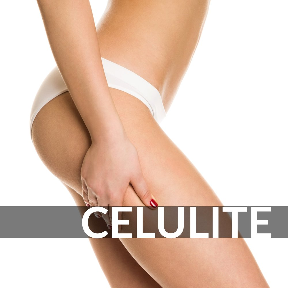 Exilis Ultra 360 - Cellulite