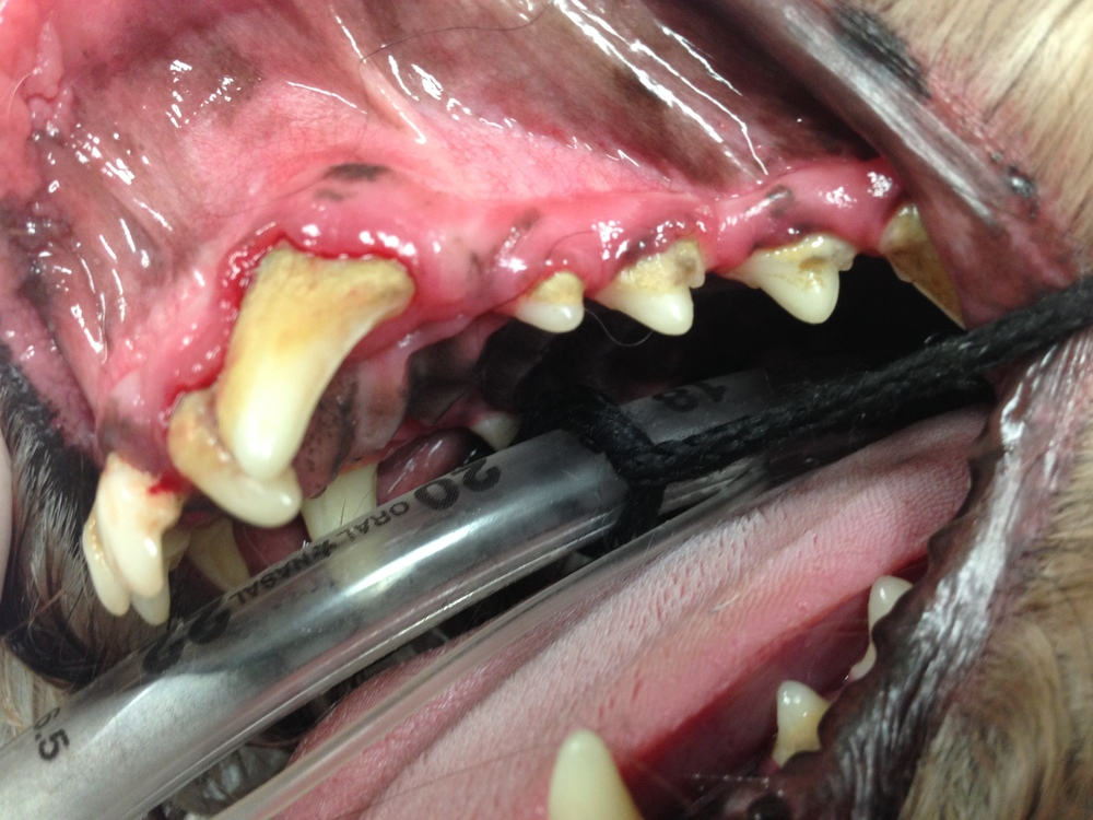 Gingivitis and receding gums