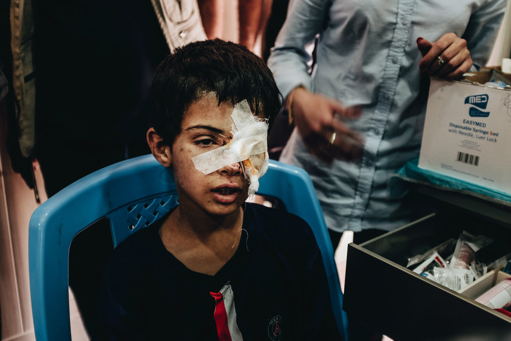 "A young boy recieves treatment for injuries sustained to his left eye at the Bartalla IDP camp outsie of Mosul that was specifically set up for families with suspected ties to the Islamic State. The vast majority of people in the camp are women and children, taken to the camp against their will to recieve ""psycological and ideological rehabilitation"" according to a directive issued by Mosul's district council."