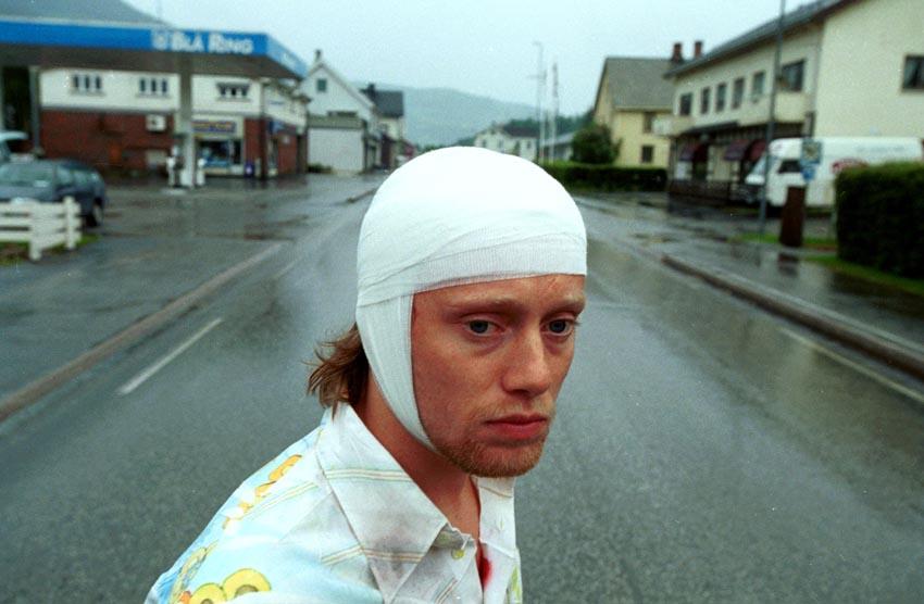Jonny med bandasje.jpg