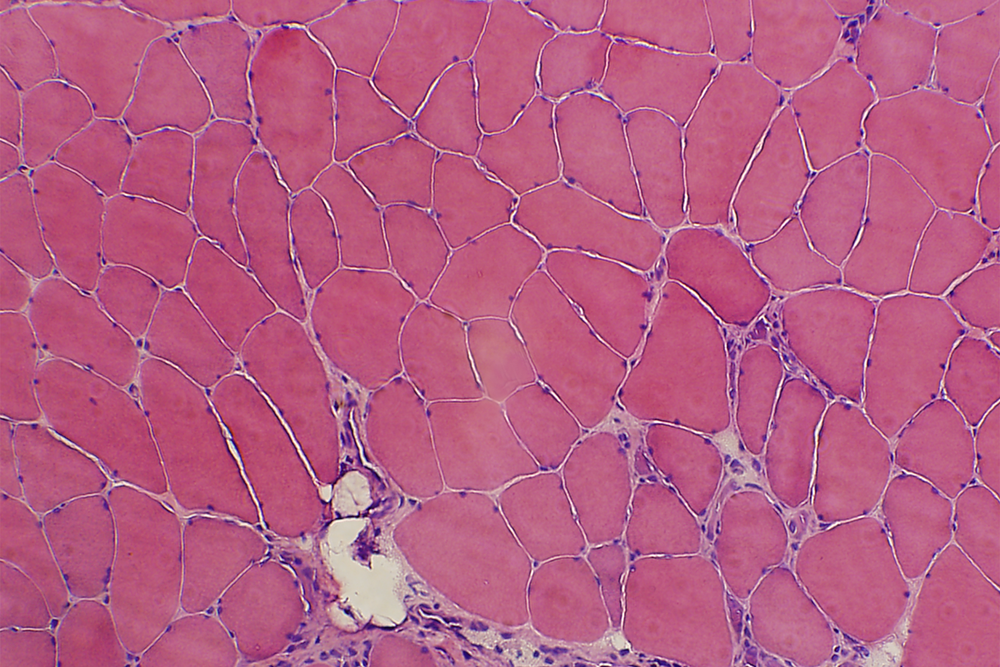 Hematoxylin and eosin staining. Pink: myofibers. Purple: nuclei.  Effects on Contralateral Muscles after Unilateral Electrical Muscle Stimulation and Exercise (  http://dx.doi.org/10.1371/journal.pone.0052230 ).