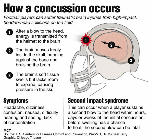 %name Five Myths About Concussions