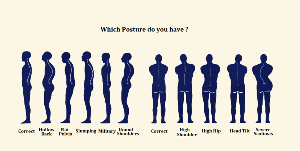 Posture Correction Scoliosis Rehab Physical Therapy correct slouching