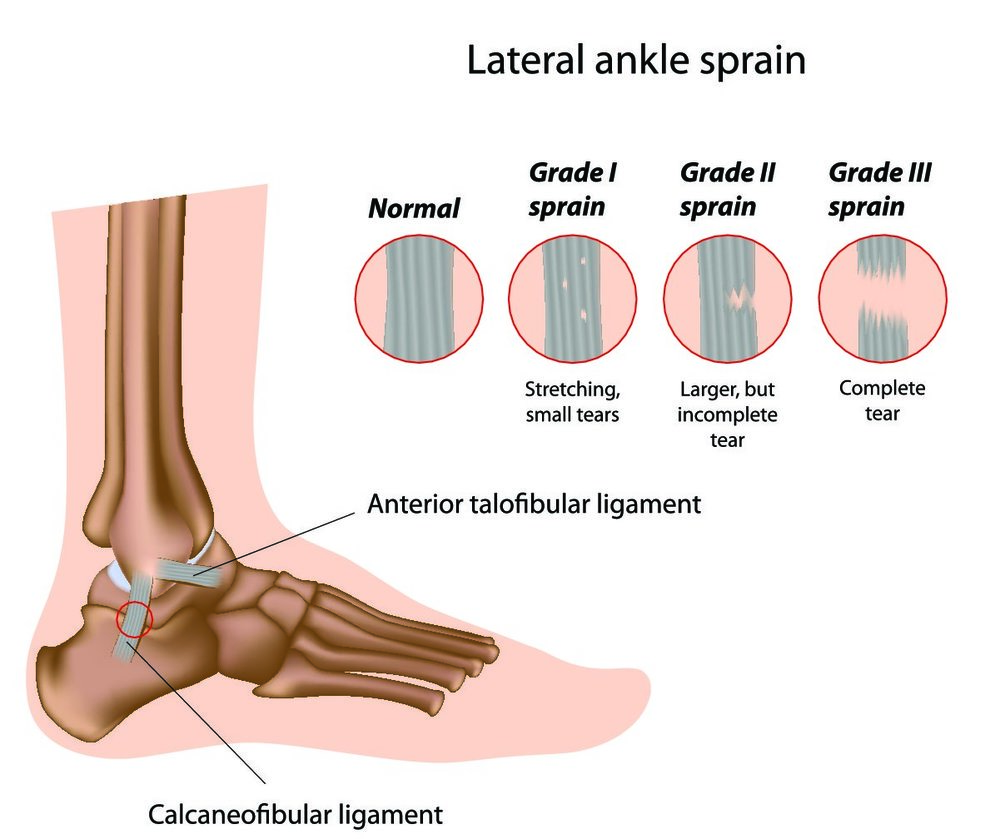 "shutterstock 90015379 Ankle Sprains: Not Just A ""Walk It Off"" Injury"