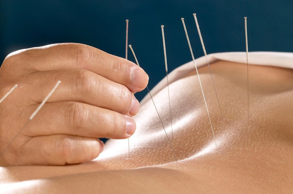 acupuncture fibroids treatment Acupuncture; Getting to the point.