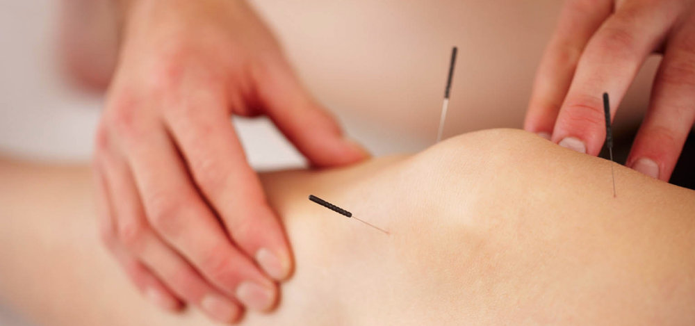 Knee Pain 1 Reduce Knee Pain Naturally with Acupuncture