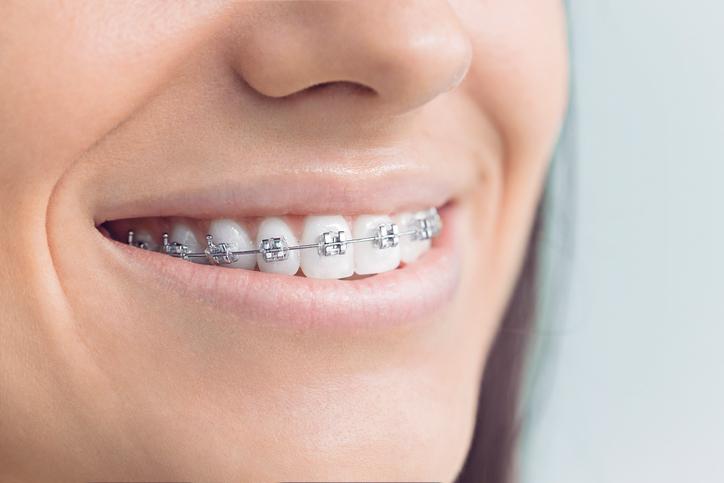 #braces #orthodontist #coloradoorthodontist #dentist