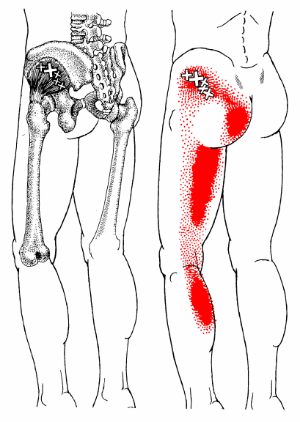Trigger point Pain referral pattern from a single hip muscle, image courtesy of Triggerpoints.net