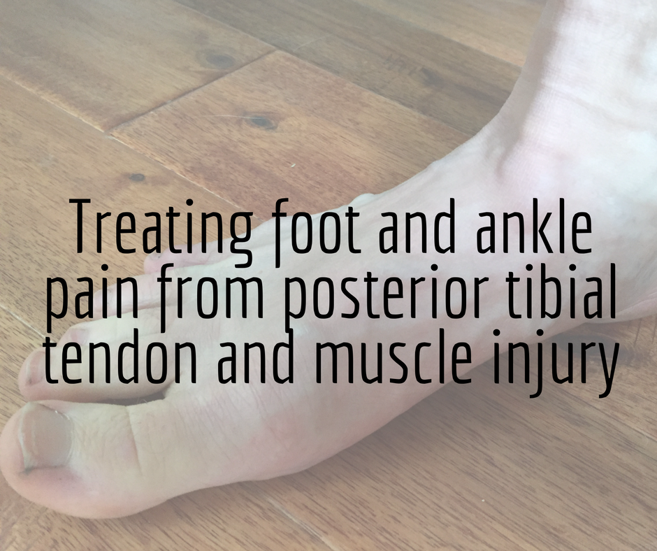 Foot and ankle pain from posterior tibial tendon and muscle injury ...