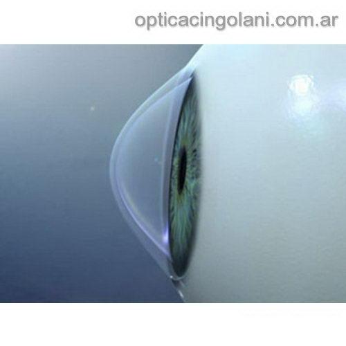 93fe64daca Lentes de contacto para Queratocono — Óptica Cingolani 4784-5553