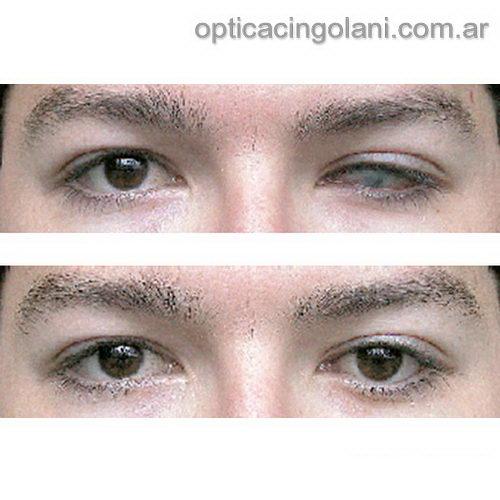 fba7592bb1 Lentes de contacto protesicas Iris Print — Óptica Cingolani 4784-5553