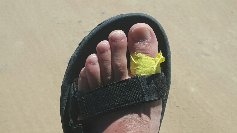 A turf toe taping technique recommended by Brian Dorfman.