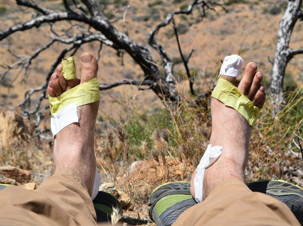 My feet after a week
