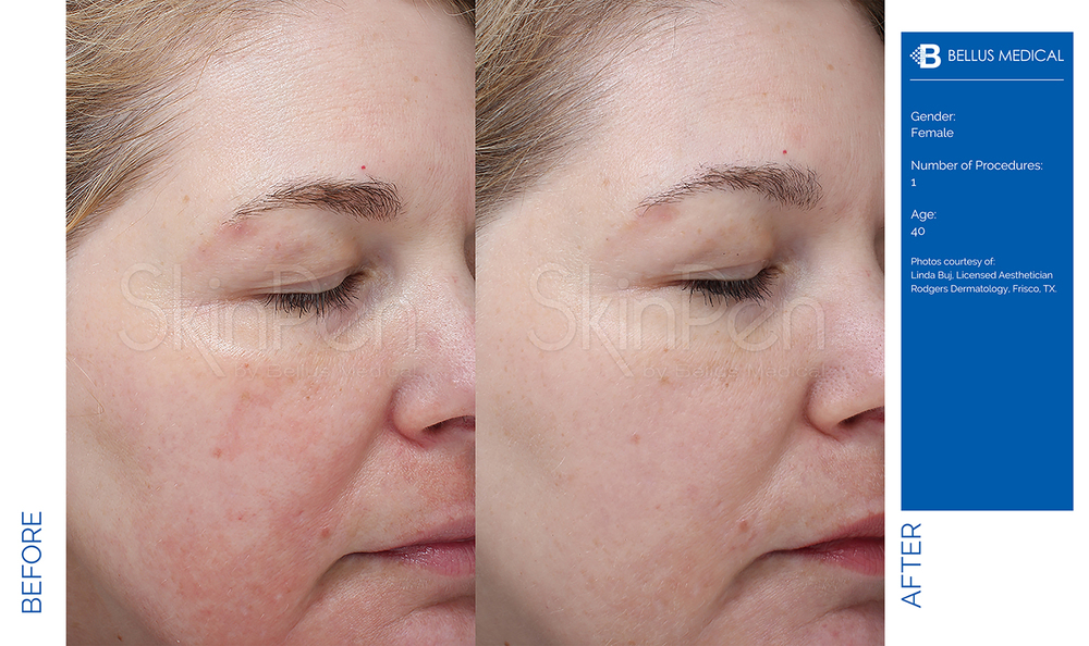 Complexions Skincare Medspa - Before & After 1