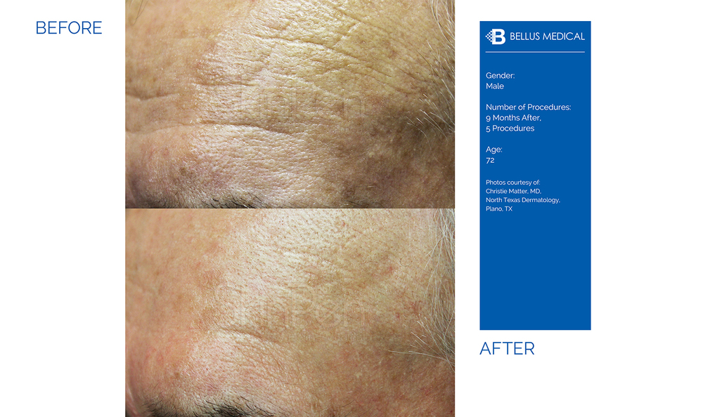 Complexions Skincare Medspa - Before & After 2