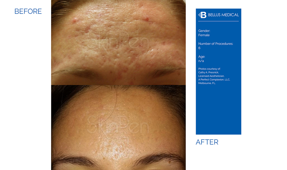 Complexions Skincare Medspa - Before & After 5