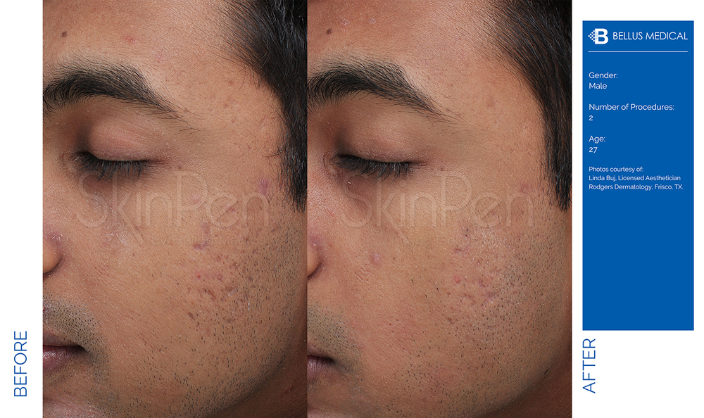 Complexions Skincare Medspa - Before & After 7