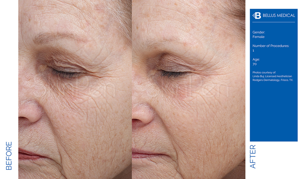Complexions Skincare Medspa - Before & After 8