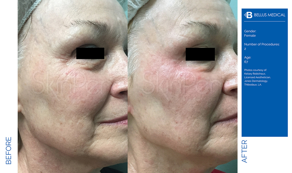 Complexions Skincare Medspa - Before & After 9