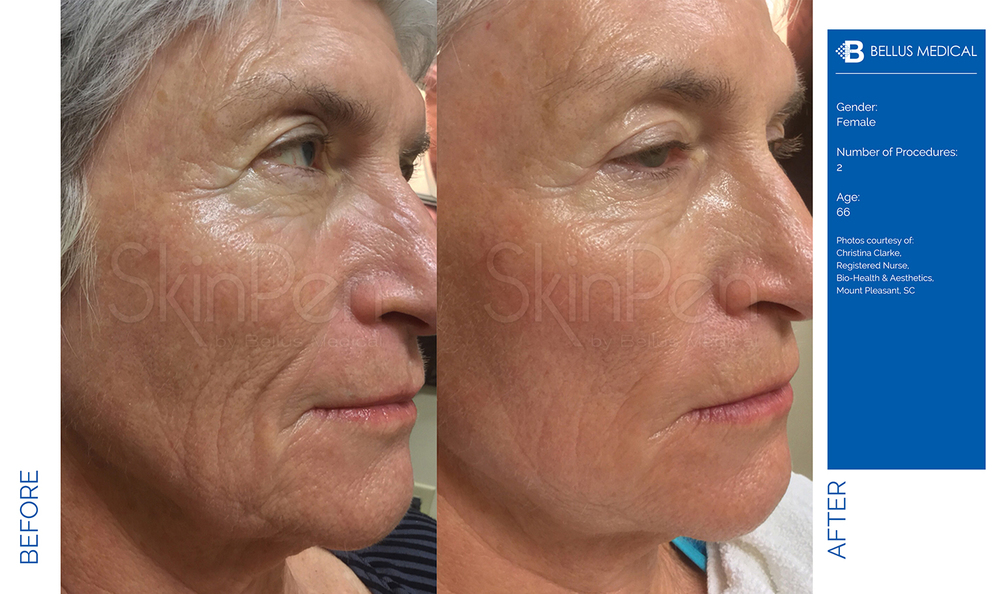 Complexions Skincare Medspa - Before & After 11