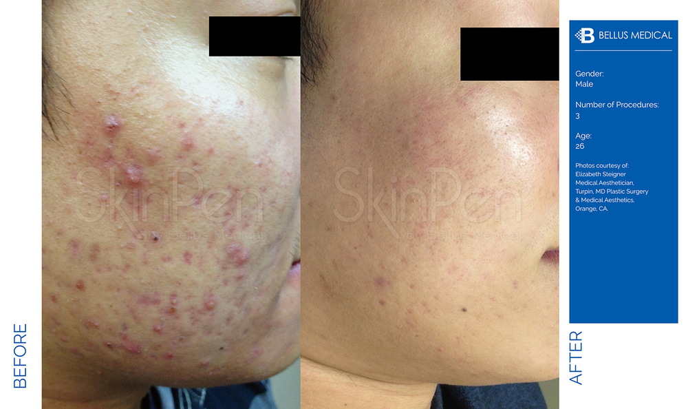 Complexions Skincare Medspa - Before & After 13