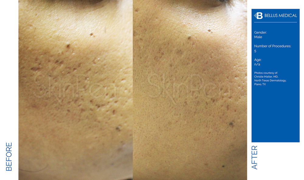 Complexions Skincare Medspa - Before & After 12