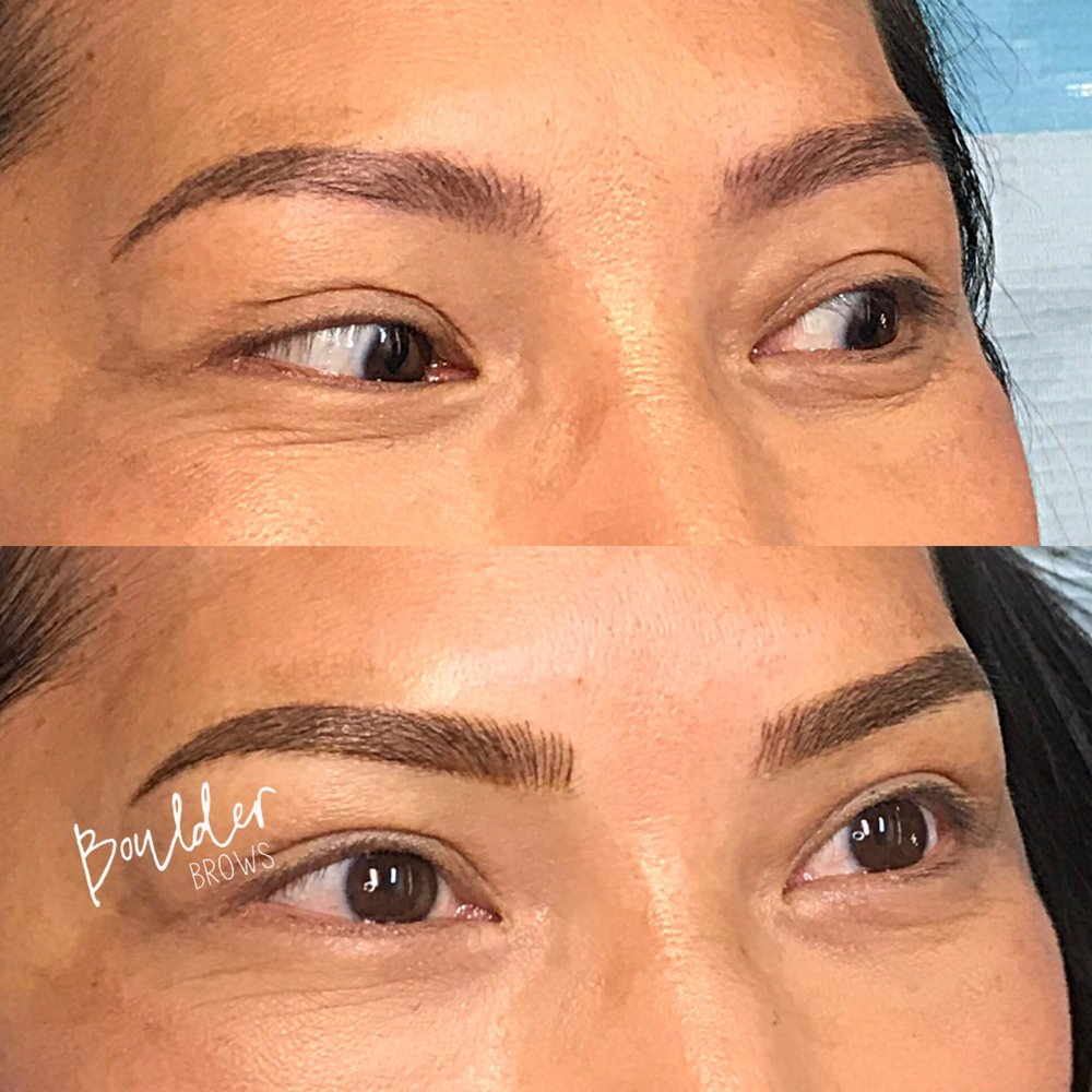 YEARLY REFRESH  [SAME CLIENT AS PRIOR PHOTO] Top: Healed After 1 Year | Bottom: Immediately After Yearly Touchup