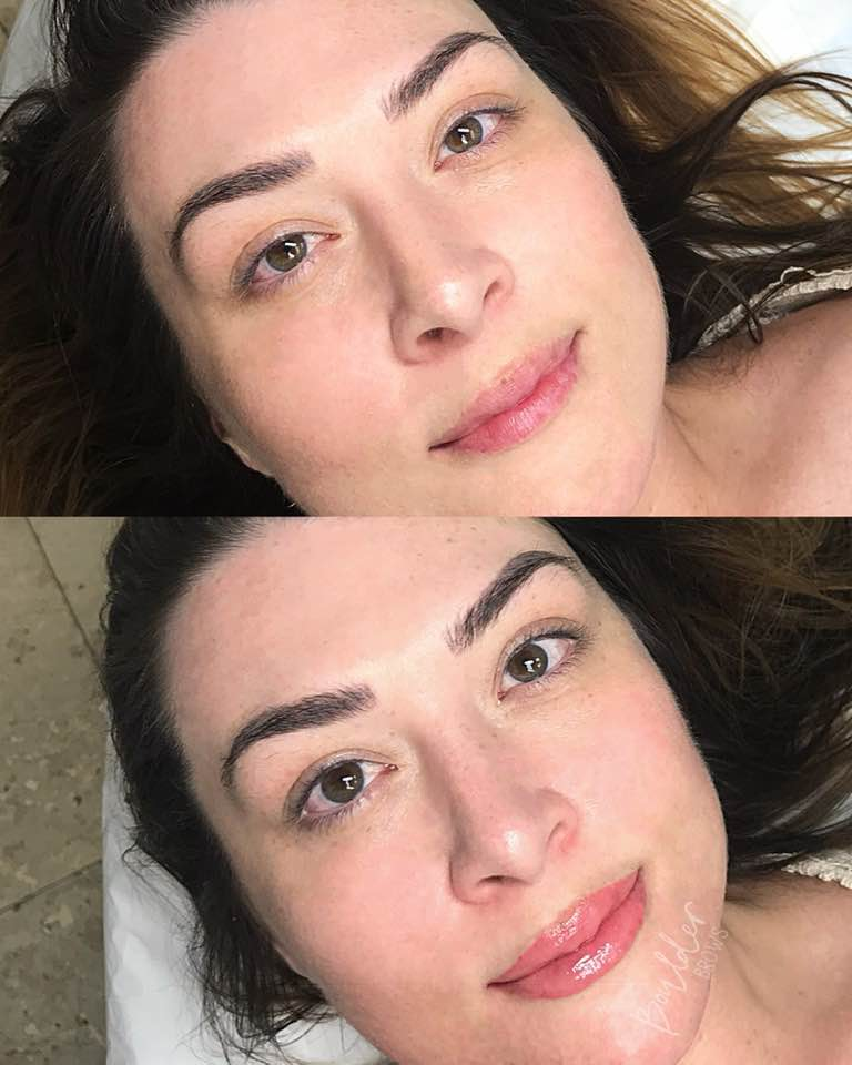 1ST LIP SESSION  BY JESS Top: Before | Bottom: After