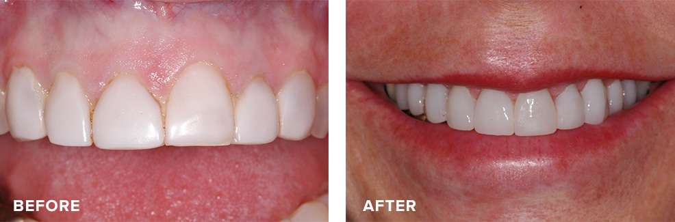 Aesthetic crown lengthening followed by veneers