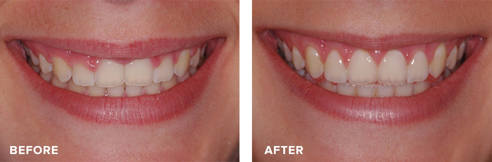 Aesthetic crown lengthening for gummy smile