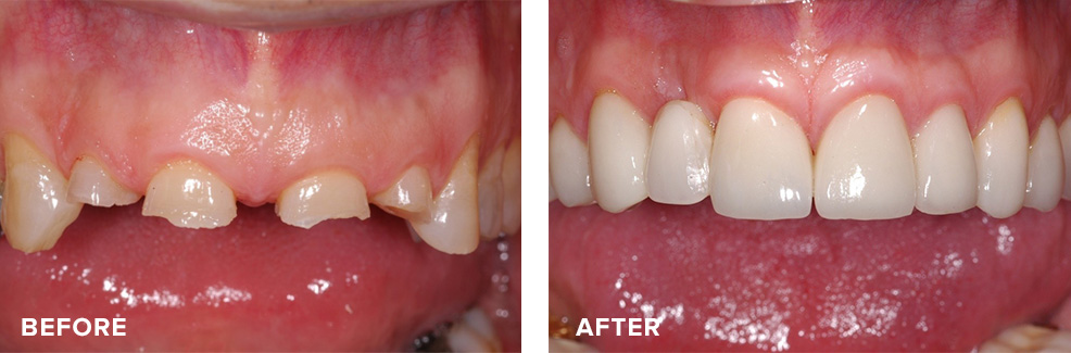 Anterior crown lengthening prior to having crowns placed
