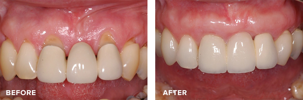 Gum graft to improve aesthetics around an existing bridge