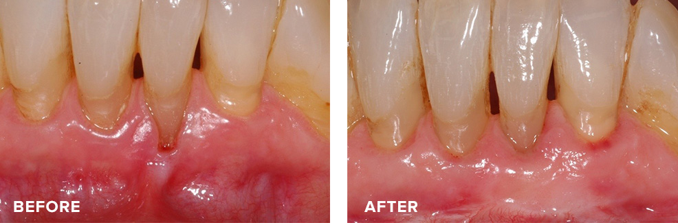 Gum graft to address recession and restore a healthy band of gum tissue around teeth