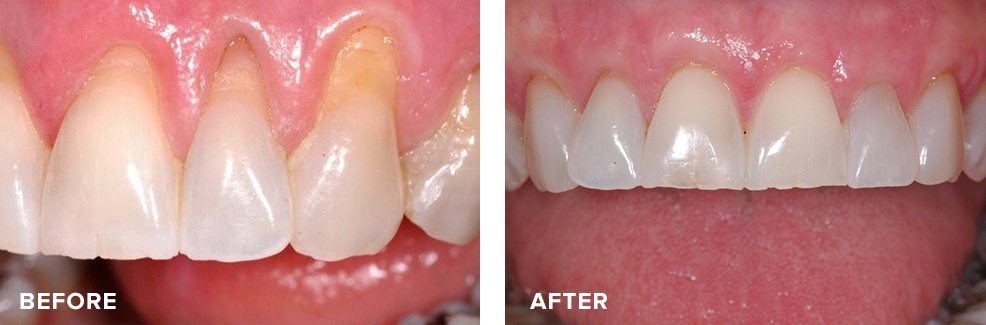 Gum graft to eliminate recession and harmonize gingival line for improved aesthetics