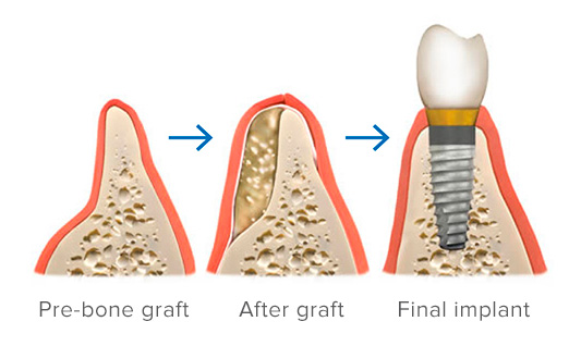 Pre-bone graft, after graft, final implant