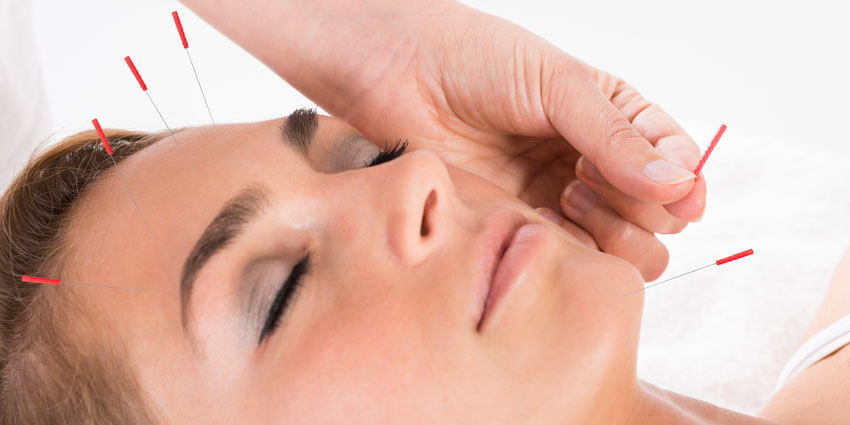 Facial acupuncture for facelifting effect