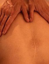 Massage-Scar.jpg