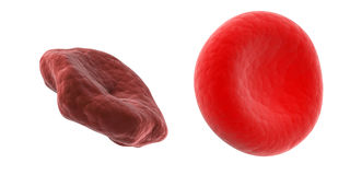 Unhealthy vs. healthy red blood cell