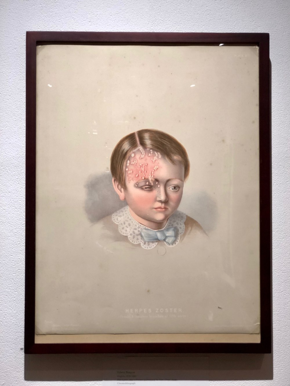 surgicalmuseumherpes.JPG