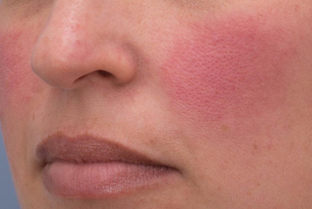 Rosacea flare up.jpg